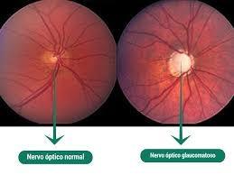 glaucoma-02