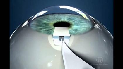 glaucoma-06