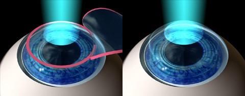 cirurgia-refrativa-3