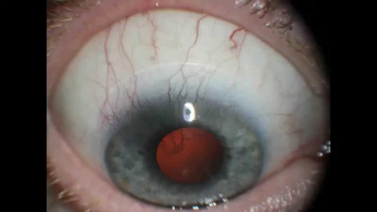 lentes-de-contato-02