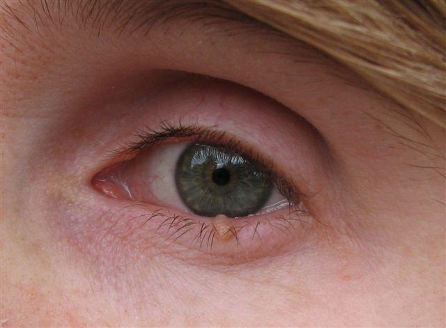 plastica-ocular-01