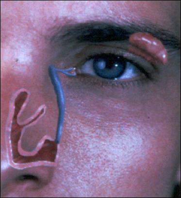 plastica-ocular-04