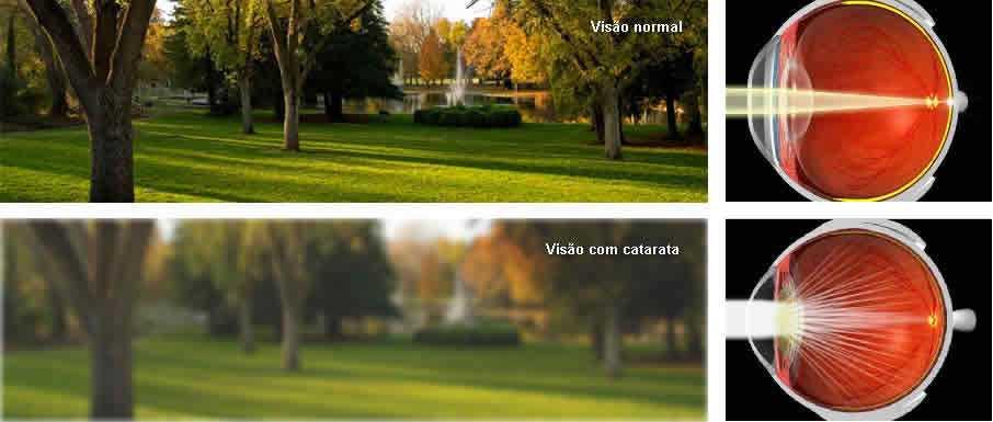 catarata_cevipa_curitiba