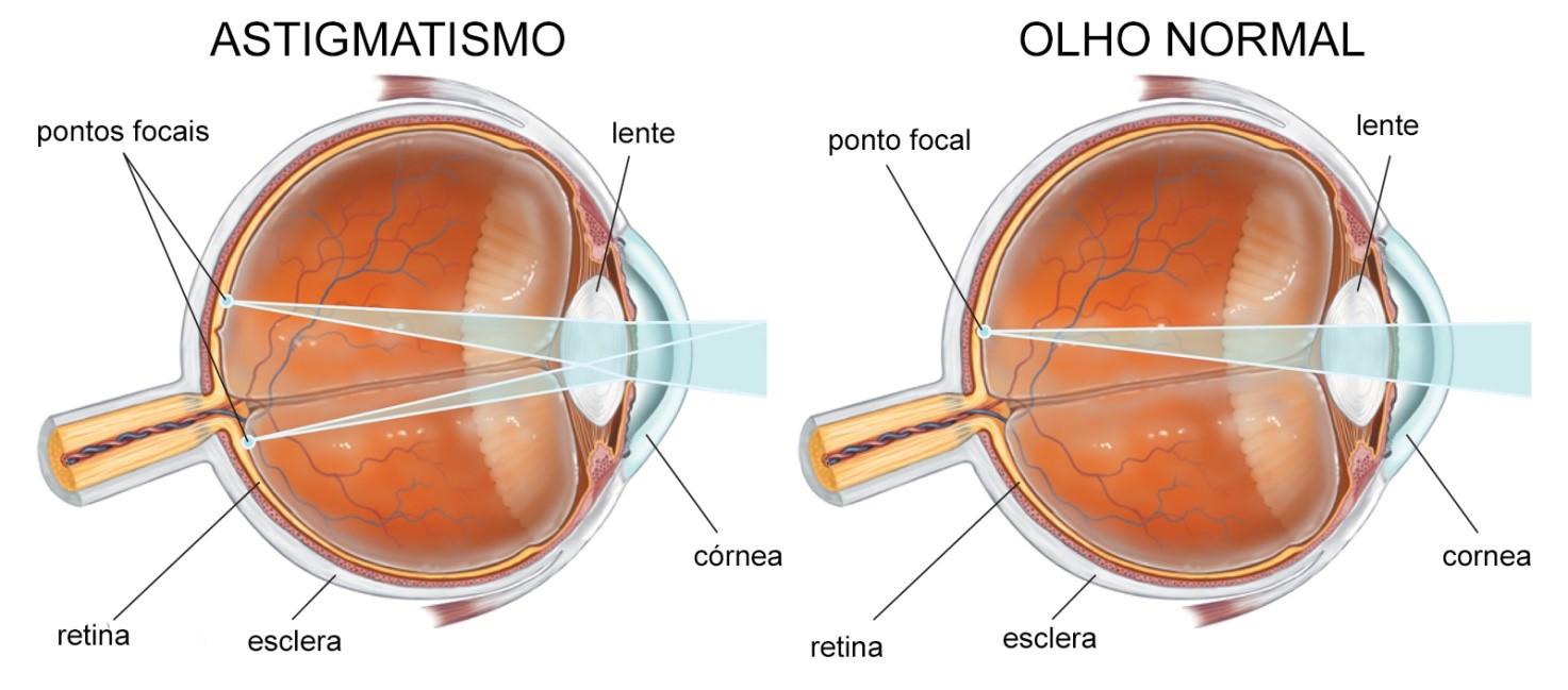 astigmatismo-01