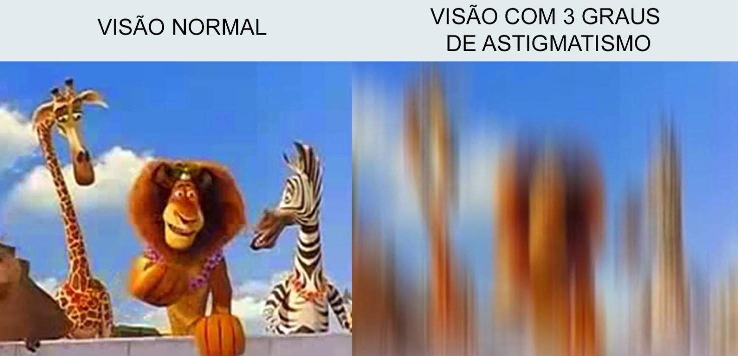 astigmatismo-02