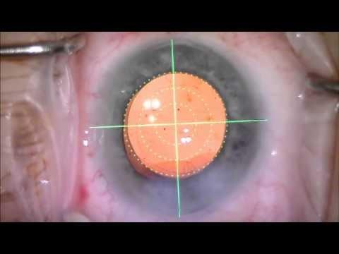 astigmatismo-05
