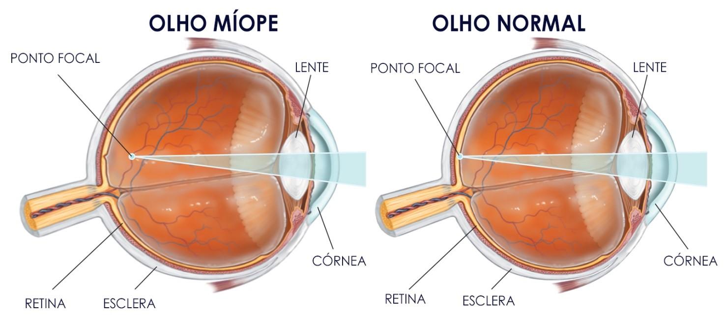 miopia-1