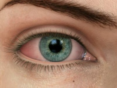 olho-seco-03
