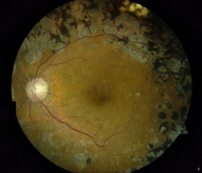 retinoplastia-hipertensiva-03
